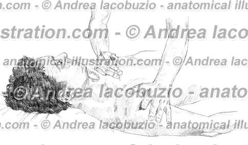 042- Muscolo Piccolo pettorale – Musculus Pectoralis minor – Pectoralis minor Muscle