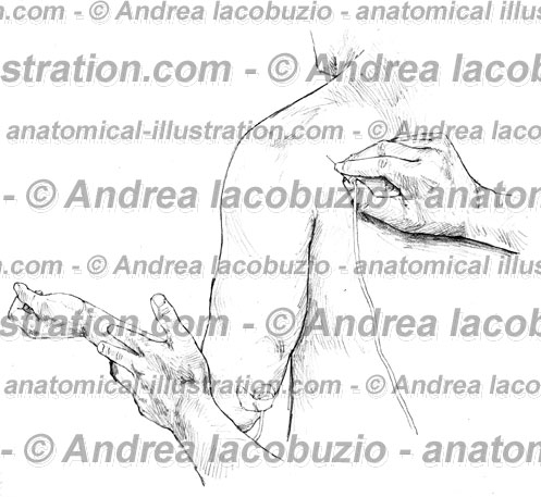 055- Muscolo Piccolo rotondo – Teres minor Muscle – Musculus Teres minor