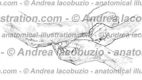 061- Muscolo Anconeo – Anconeus Muscle – Musculus Anconeus