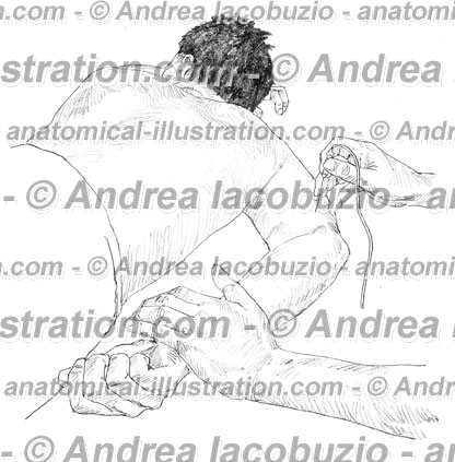064- Muscolo Tricipite brachiale – Musculus Triceps brachii – Triceps brachii Muscle
