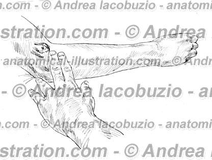 073- Muscolo Estensore radiale carpo – Musculus Extensor carpi radialis – Extensor carpi radialis Muscle