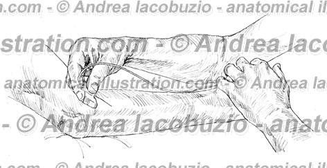 074- Muscolo Estensore radiale carpo – Musculus Extensor carpi radialis – Extensor carpi radialis Muscle