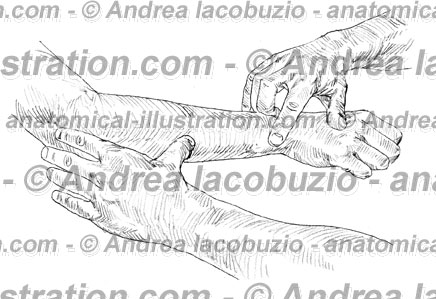 104- Muscolo Estensore ulnare carpo – Musculus Extensor carpi ulnaris – Extensor carpi ulnaris Muscle