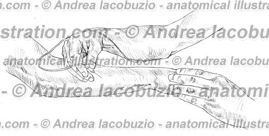 105- Muscolo Estensore ulnare carpo – Musculus Extensor carpi ulnaris – Extensor carpi ulnaris Muscle