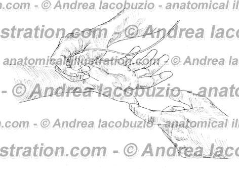 123- Muscolo Abduttore breve pollice – Musculus Abductor pollicis brevis – Abductor pollicis brevis Muscle