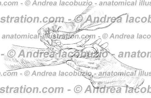 126- Muscolo Opponente pollice – Musculus Opponens pollicis – Opponens pollicis Muscle