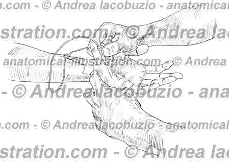 148 – Muscolo Flessore brev mignolo – Musculus Flexor digiti minimi brevis – Flexor digiti minimi brevis Muscle